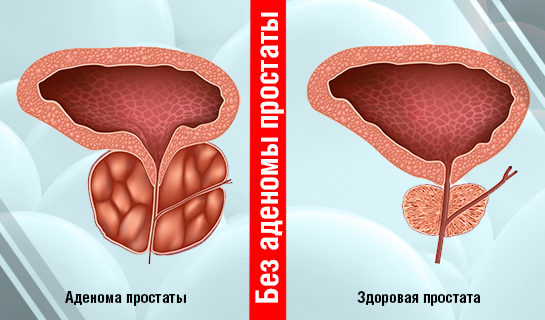 Prostatitni